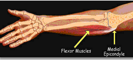 Why Does My Son Have Forearm Soreness?