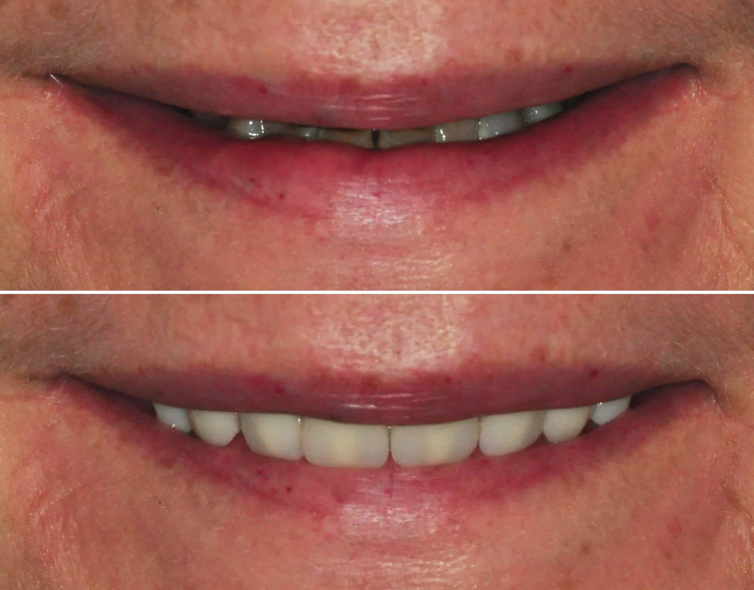 Dentures By Dr Ben Walker At Beverley Dental Raynes Park London