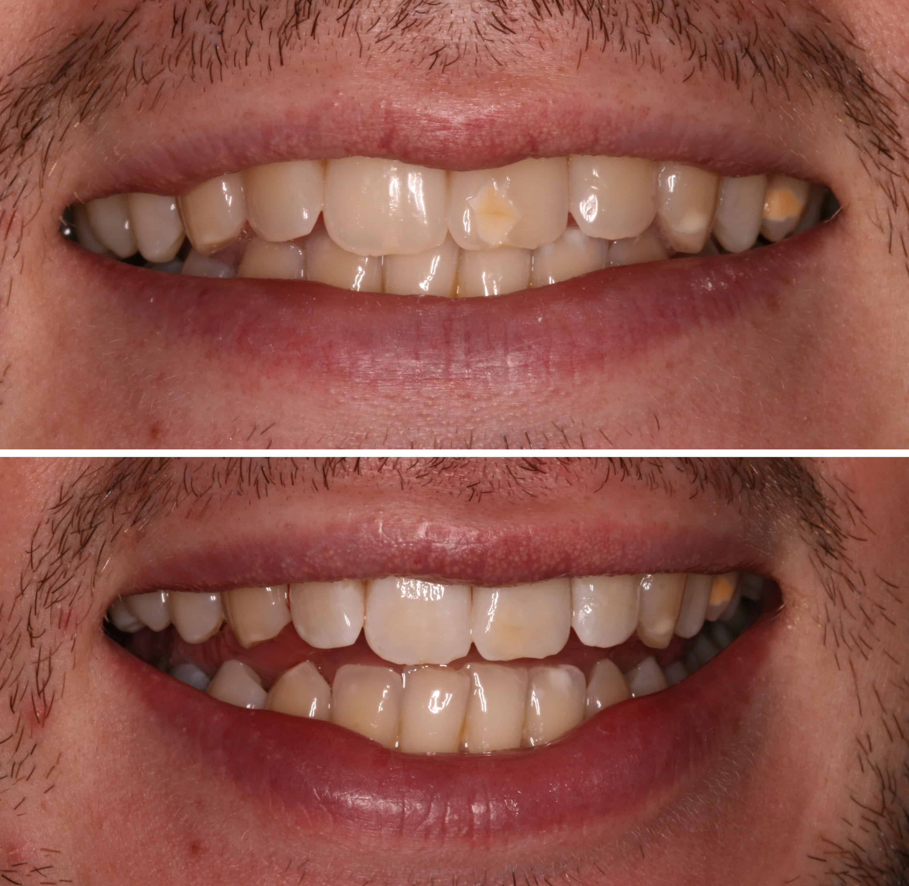 ICON Treatment By Dr Ben Walker At Beverley Dental Raynes Park London