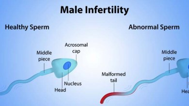 Photo of Male Infertility: reasons, remedy And Prevention