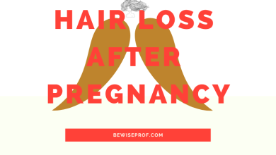 Photo of Hair loss after pregnancy