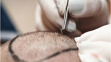 Photo of Top 6 Hair transplant myths!