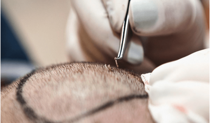 Top 6 Hair transplant myths!