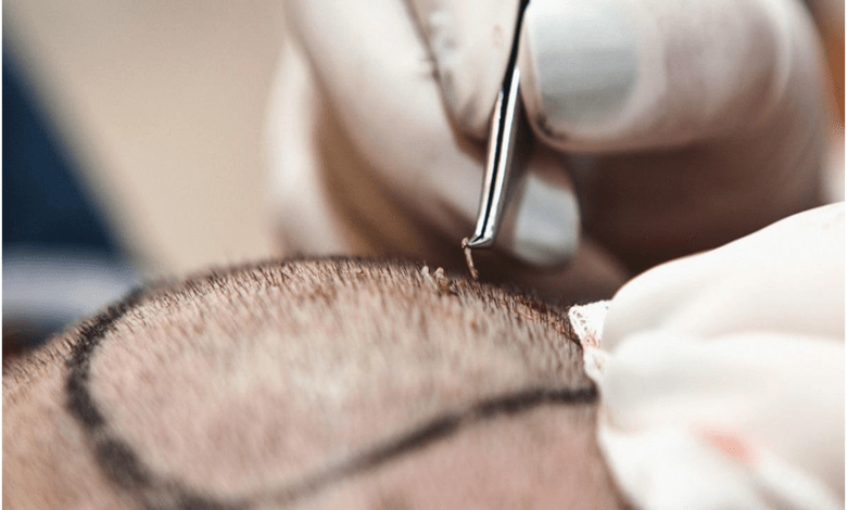 Top 6 Hair transplant myths!