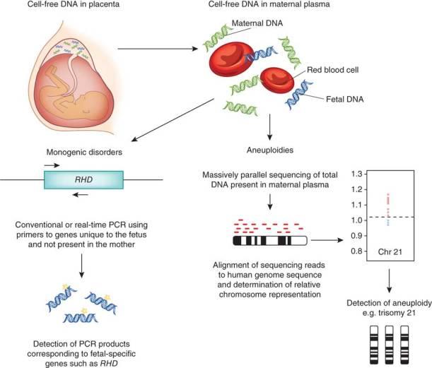 Non-invasive prenatal diagnosis: cell-free fetal DNA in ...