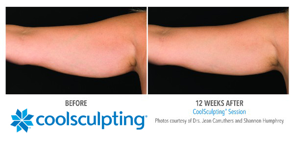 CoolSculpting Petite Applicator