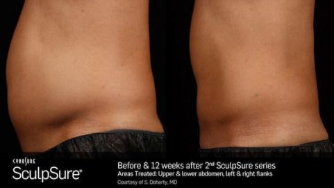 SculpSure Male
