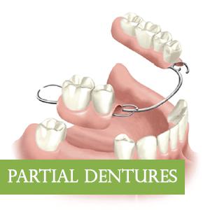 PartialDentures-Graphic