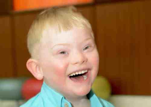Birmingham, Alabama, Children's of Alabama, Beaux Waites, Down Syndrome, patient