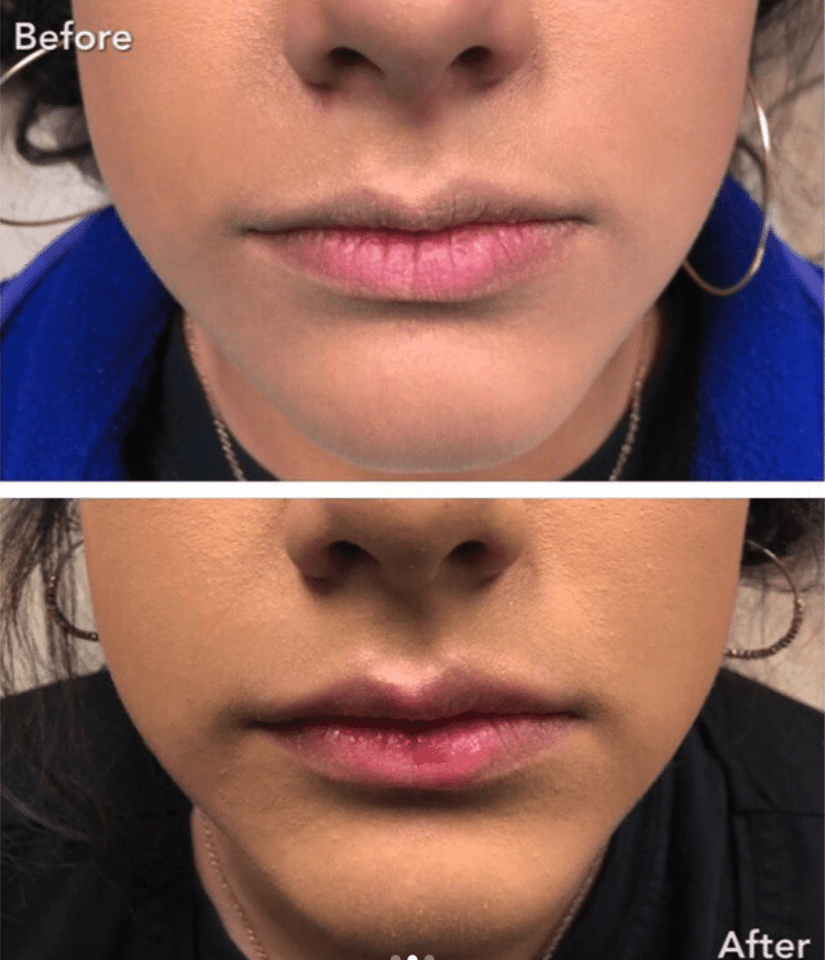 Lip flip before and after