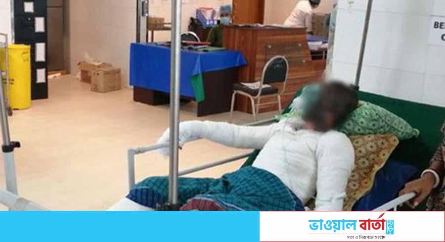 গাজীপুরের টঙ্গিতে স্টিলমিলে দগ্ধ আরও এক শ্রমিকের মৃত্যু
