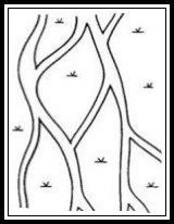 বিনুনিরূপী জলনির্গম প্রণালী (Braided Drainage Pattern)