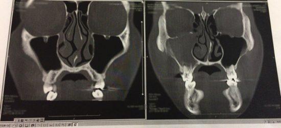 虫歯で副鼻腔炎CT画像