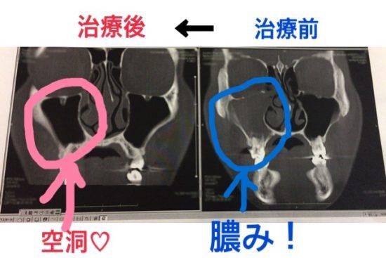 虫歯で副鼻腔炎抗生物質で治療CT画像