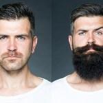 【ニードル脱毛】で髭脱毛するべき人の10の特徴