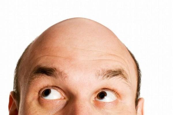 ハゲ 薄毛 予防