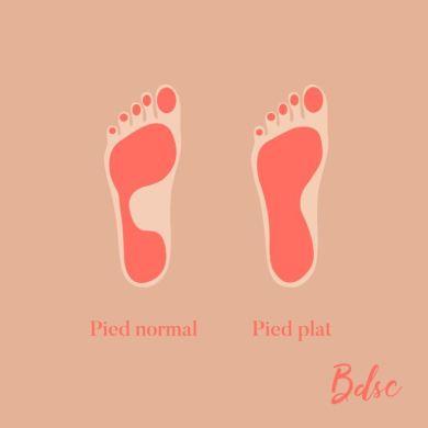 quelles chaussures porter quand on a les pieds plats