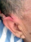 李洪奎的右側耳部有一長3CM左右縱向豁裂傷口