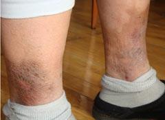 證據照片:初立文被鐵夾板夾雙腿後腿上傷痕