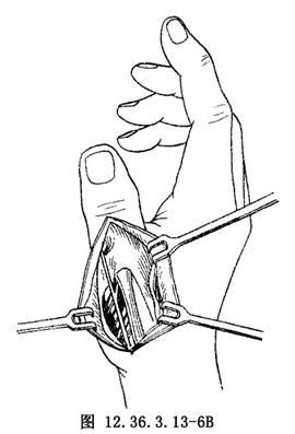 環指淺屈肌腱移位重建拇指對掌功能_英文_拼音_什么是環指淺屈肌腱移位重建拇指對掌功能_醫學百科