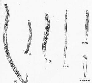 糞類圓線蟲_英文_拼音_糞類圓線蟲的癥狀,診斷_醫學百科