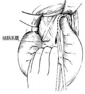 結腸直腸切除肛門外吻合術_拼音_什么是結腸直腸切除肛門外吻合術_醫學百科