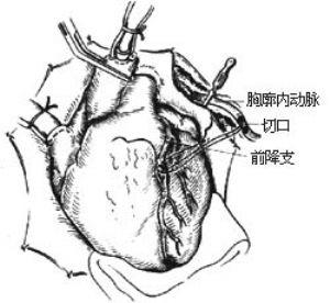 冠狀動脈旁路移植術_英文_拼音_什么是冠狀動脈旁路移植術_醫學百科