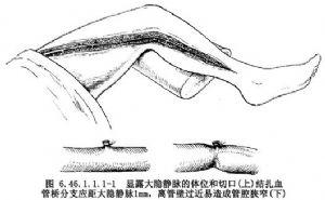 主動脈冠狀動脈搭橋移植術_什么是主動脈冠狀動脈搭橋移植術_醫學百科