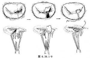 二尖瓣成形術_英文_拼音_什么是二尖瓣成形術_醫學百科