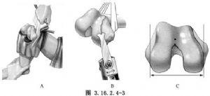 旋轉鉸鏈型人工膝關節置換術_旋轉鉸鏈型人工膝關節置換術的治療_醫學百科