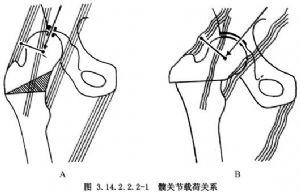 股骨近端截骨術_英文_拼音_什么是股骨近端截骨術_醫學百科