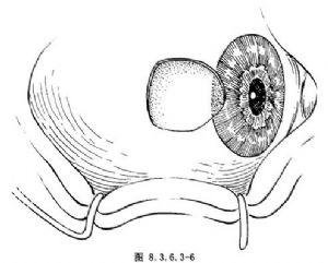 結膜角膜皮樣腫切除術_英文_拼音_什么是結膜角膜皮樣腫切除術_醫學百科