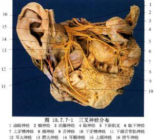 三叉神經痛病變性骨腔刮治術_什么是三叉神經痛病變性骨腔刮治術_醫學百科