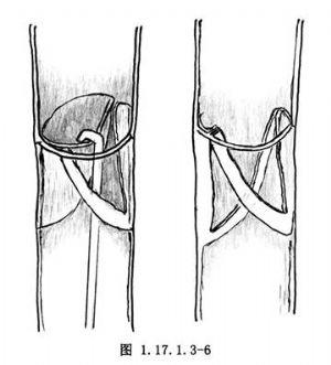 股動脈-脛前動脈大隱靜脈旁路術_什么是股動脈-脛前動脈大隱靜脈旁路術_醫學百科