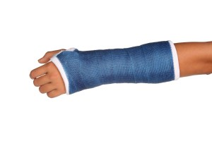 Blue cast on an arm of a child isolated on white background