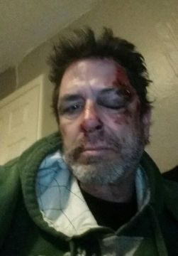 Big Brother 2014 Spoilers - Evel Dick Head Injury