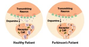 parkinsons_patients_have_less_dopamine