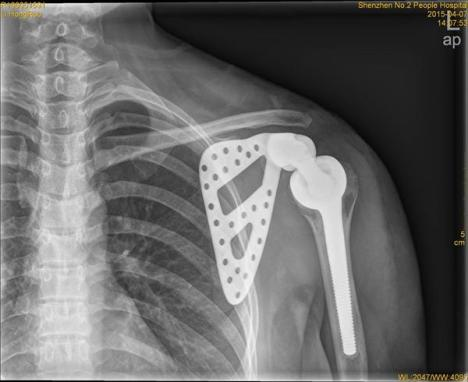 patient-from-south-china-given-new-printed-titanium-shoulder-4