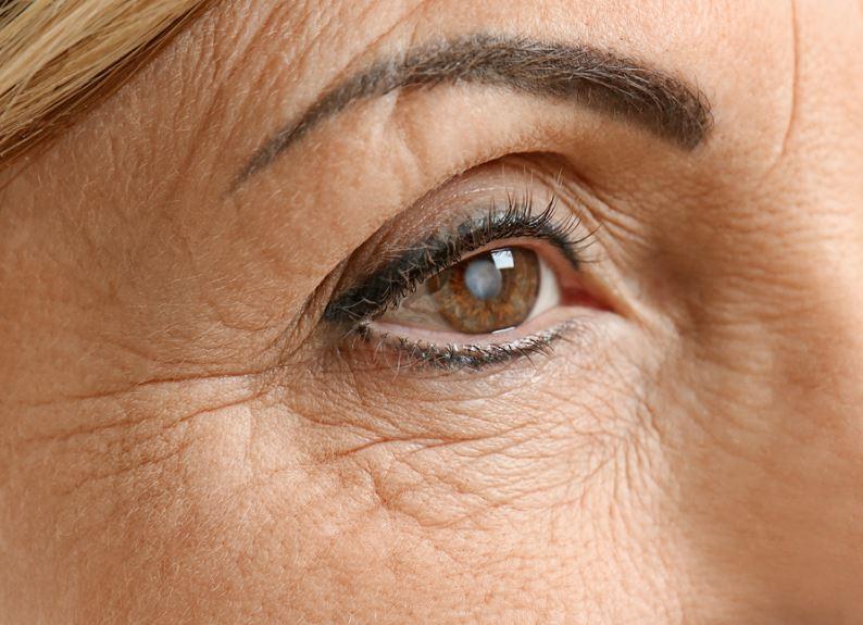 elderly-cataract-signs
