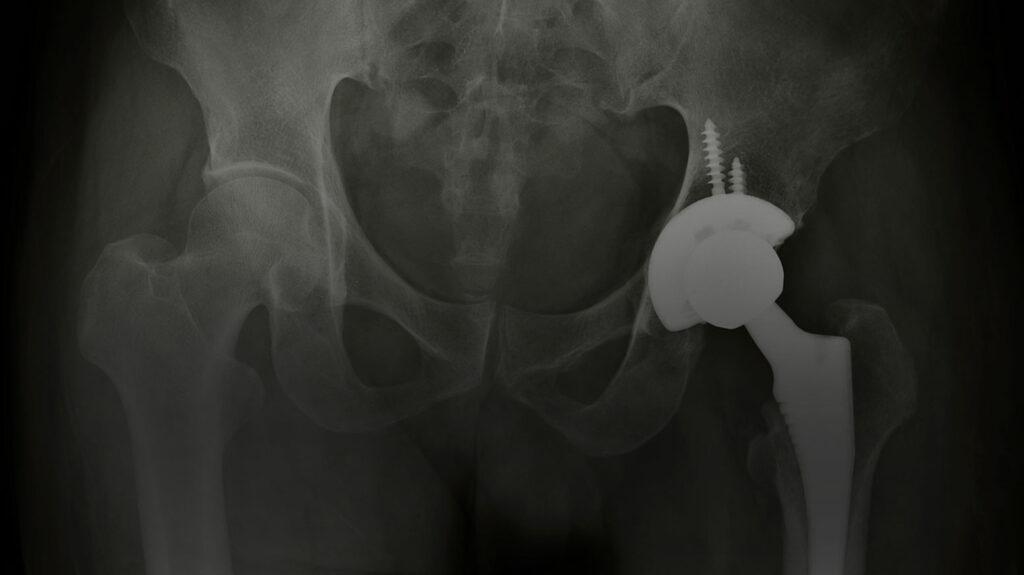 Defective Hip Implant