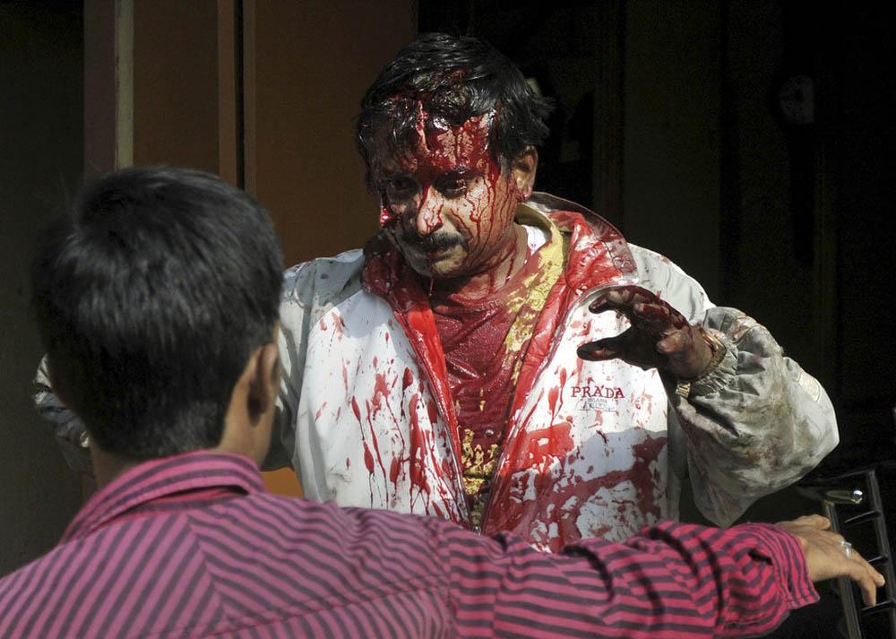 04 Леопард скальпировал горожанина в Индии