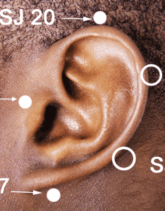 San jiao points around the ear also relieve stuffy ears with acupressure cindy black  lmt rh bigtreehealing
