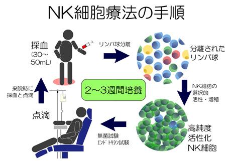 NK細胞療法 | 株式會社日本バイオセラピー研究所