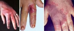 Sepsis door via diercontact geïnfecteerde vinger