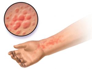 Overgevoeligheid door allergie van het directe type