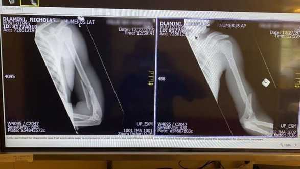 Ciclista tem braço quebrado