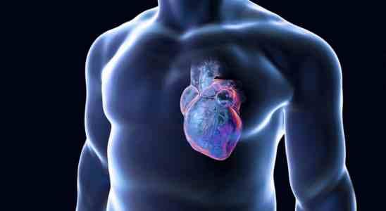 Miocardite
