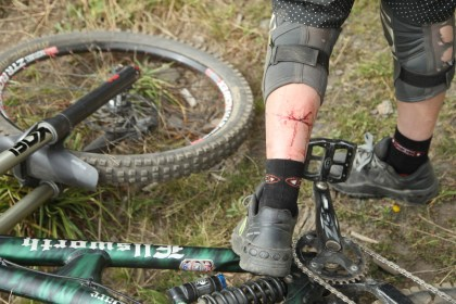 Ouch that's a nasty gash.