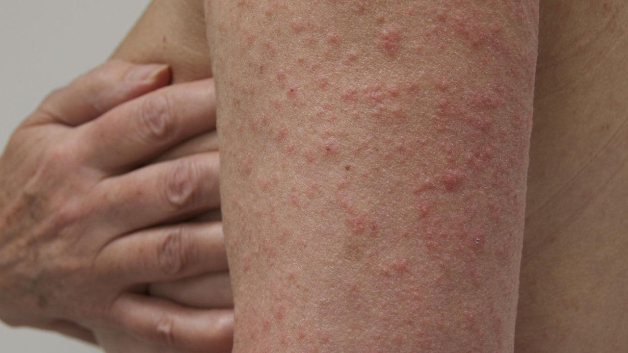 Allergien im Frhling Das hilft gegen Immunreaktionen