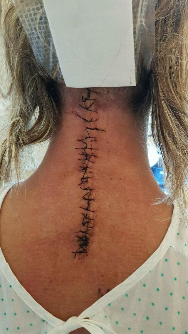 Bild tagen efter operationen av nacken i Barcelona. Hon har nu noll procent rörlighet i nacke och huvud.